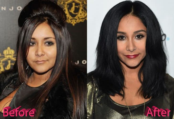 Snooki Before And After Plastic Surgery 1