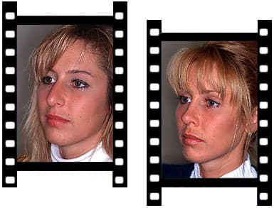 Before And After Facial Plastic Surgery 1