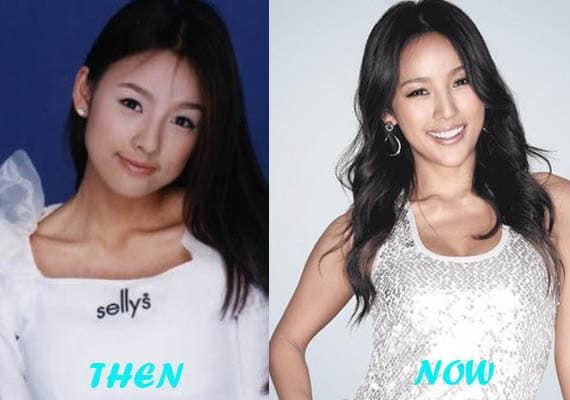 Miss Korea Plastic Surgery Before After 1