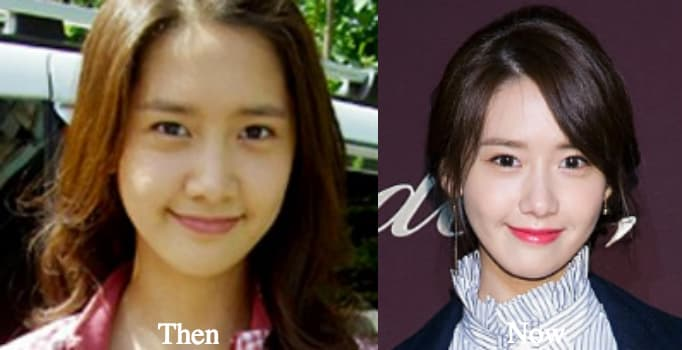 Yoona Snsd Before After Plastic Surgery 1