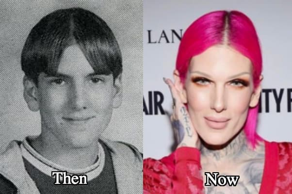 Jeffree Star Before The Plastic Surgery 1