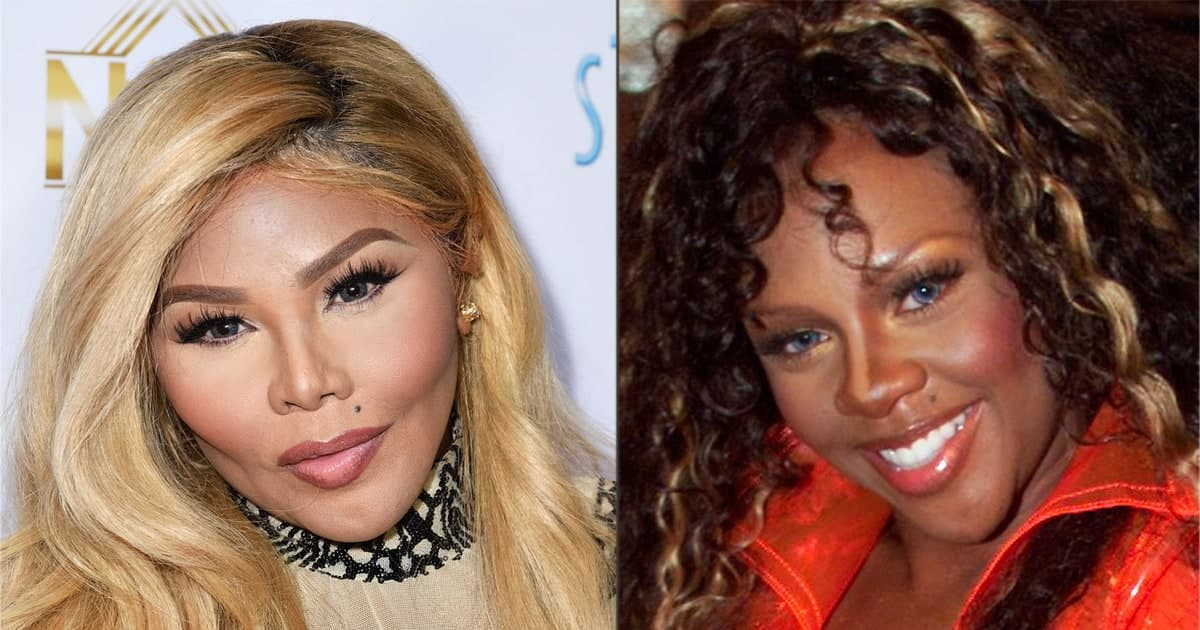 Lil Kim Plastic Surgery Before And Over 1