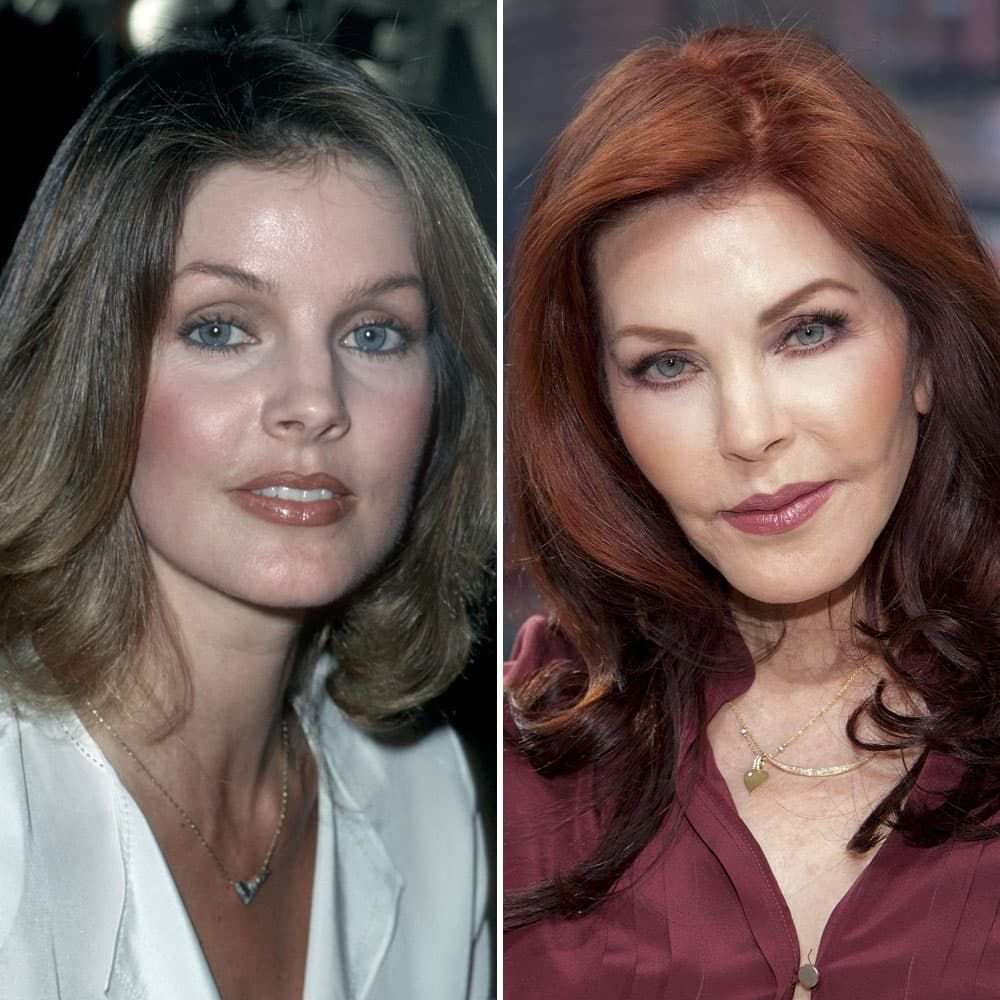 Plastic Surgery Sexy Eyes Before After 1