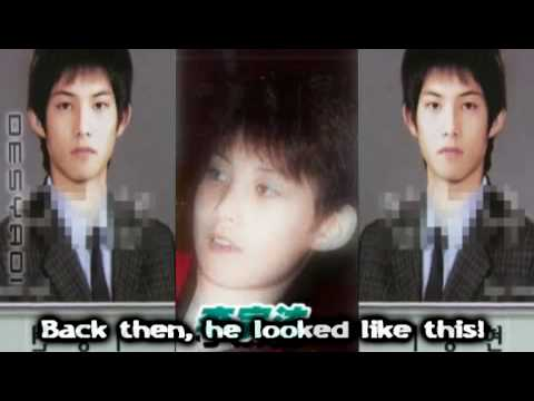 Cnblue Before And After Plastic Surgery 1