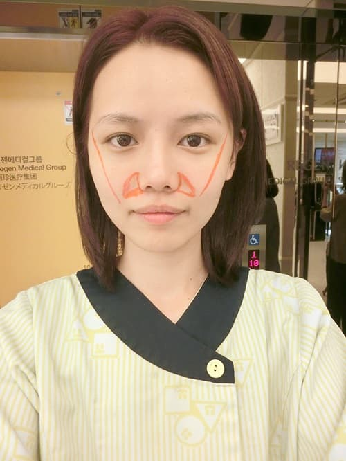 Qiuqiu Plastic Surgery Before And After 1
