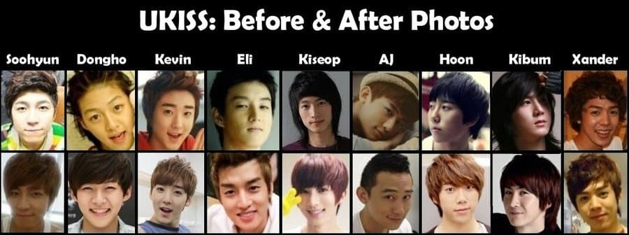 U Kiss Plastic Surgery Before And After 1
