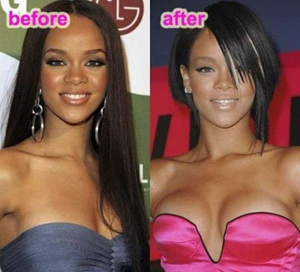 plastic surgery breast before and after 1