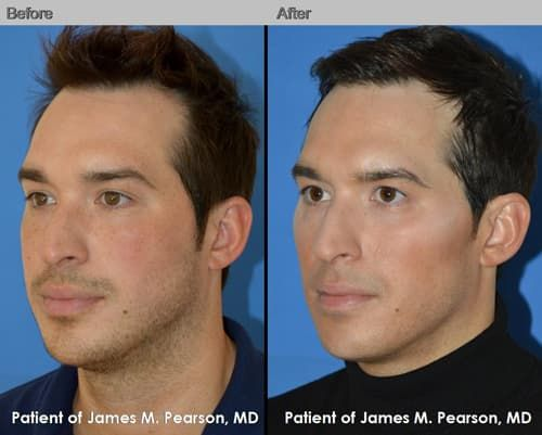 Mens Facial Plastic Surgery Before And After photo - 1