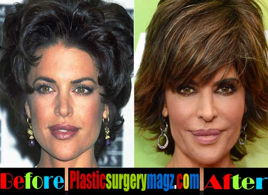 Barbara Hershey Before After Plastic Surgery photo - 1