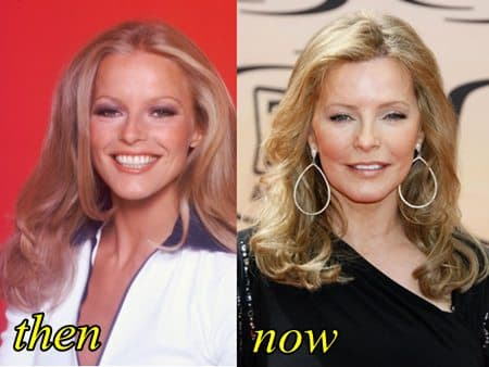 Cheryl Ladd Before And After Plastic Surgery photo - 1