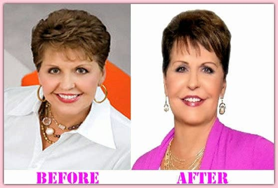 Joyce Meyer Before And After Plastic Surgery photo - 1