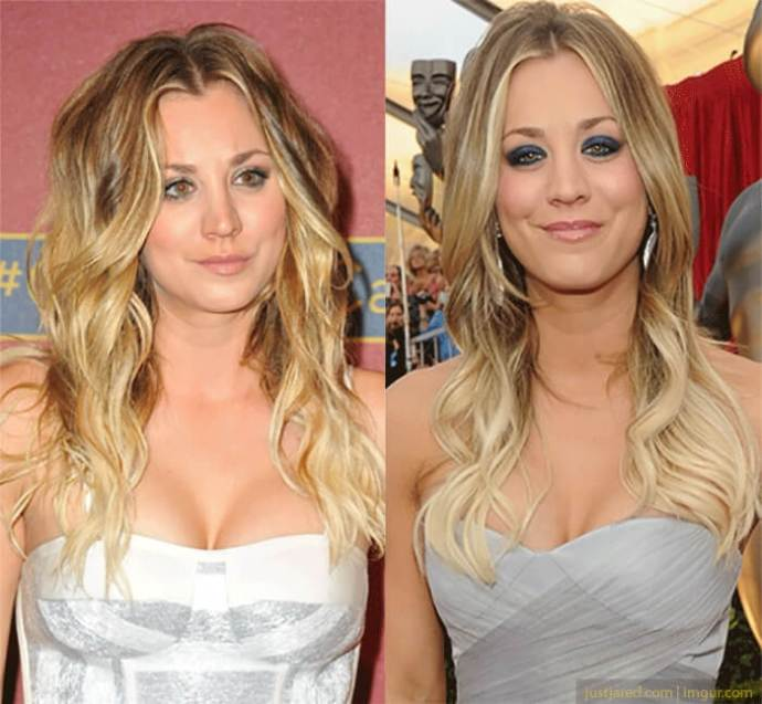 Kaley Cuoco Plastic Surgery Before And After photo - 1