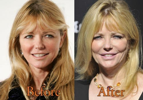 Kennedy Summers Before After Plastic Surgery photo - 1