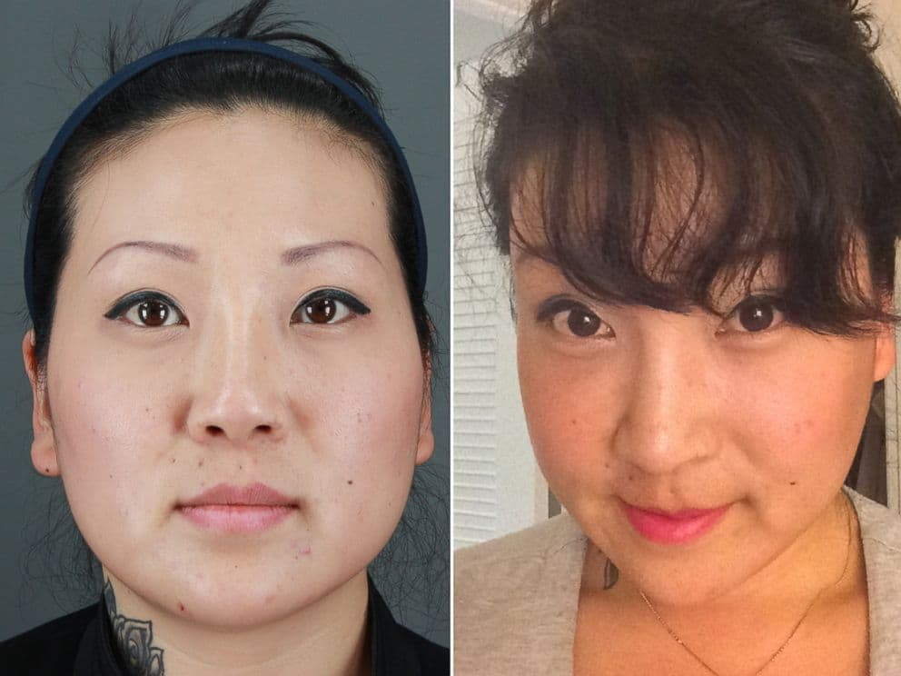 Korean Face Plastic Surgery Before And After photo - 1