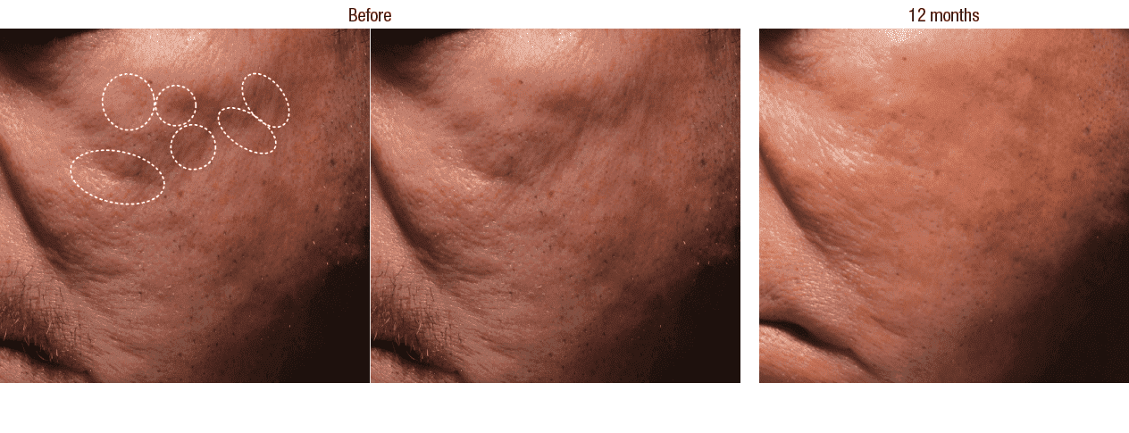 Plastic Surgery Acne Scars Before And After photo - 1