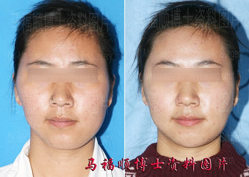 Plastic Surgery Before And After Face Images photo - 1