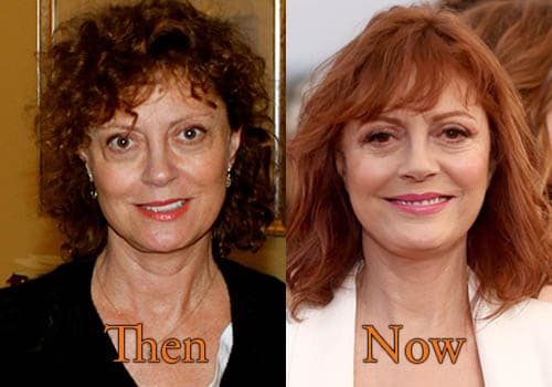 Susan Lucci Before And After Plastic Surgery photo - 1