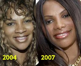 Salt N Pepa Before And After Plastic Surgery photo - 1
