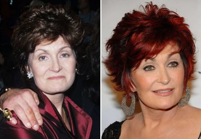 Sharon Osbourne Plastic Surgery Before After photo - 1