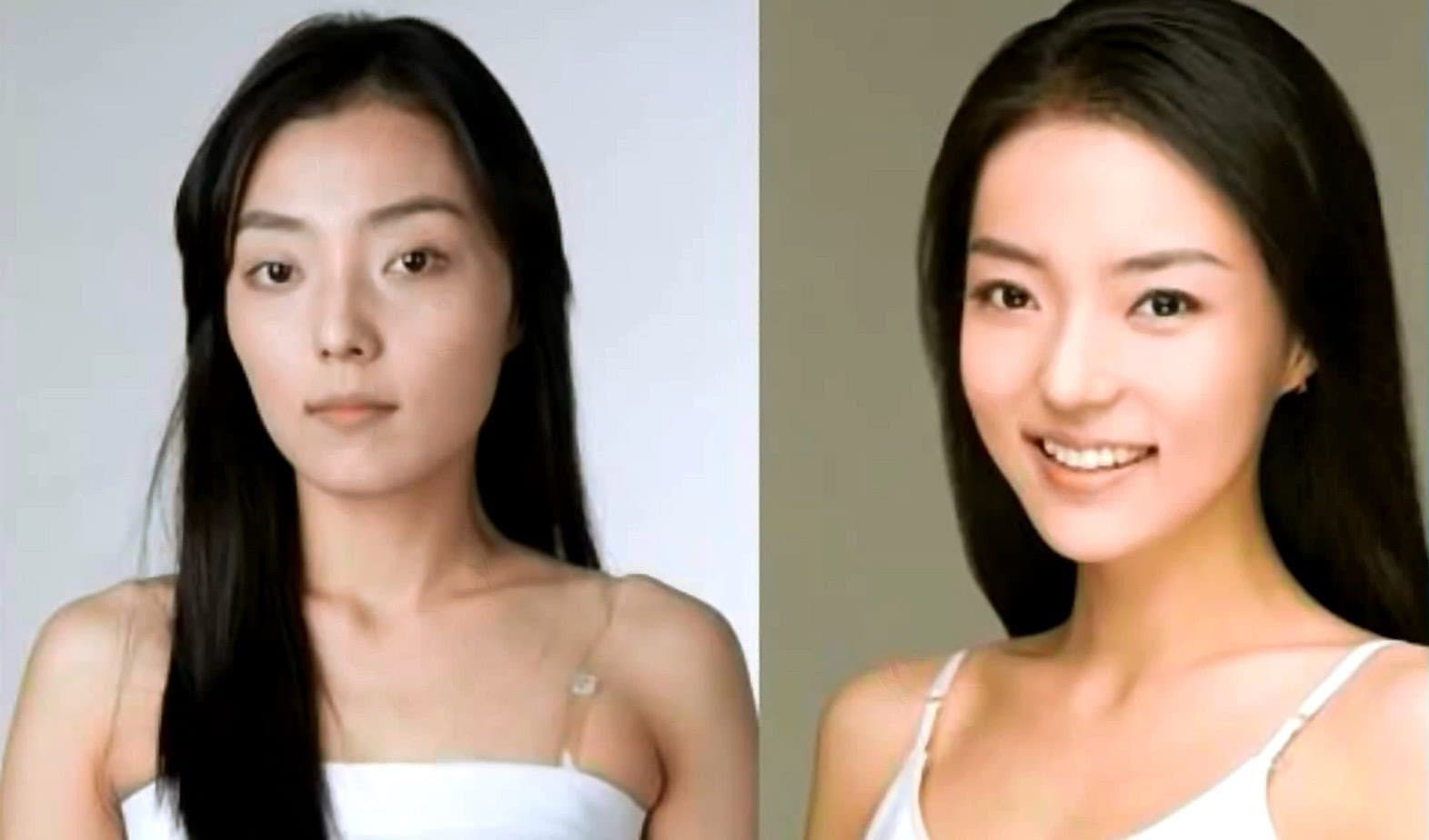 Trend Plastic Surgery Korea Before And After photo - 1