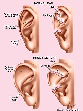 Earlobe Plastic Surgery Before And After 1