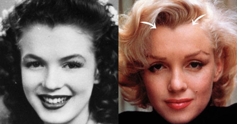 Madonna Before And After Plastic Surgery 1