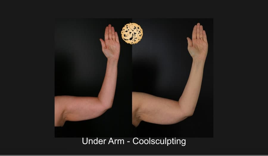Plastic Surgery On Arms Before And After 1