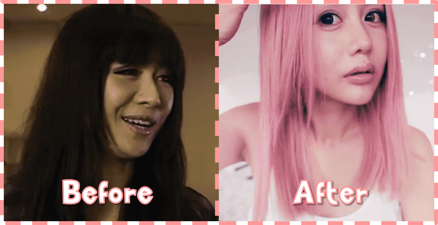 Wengie Plastic Surgery Before And After 1
