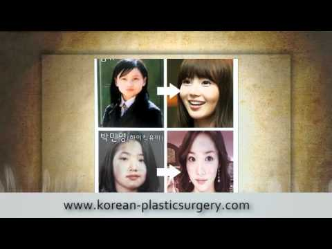 Youtube Plastic Surgery Before And After 1
