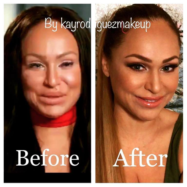 Before After Weight Loss Plastic Surgery 1