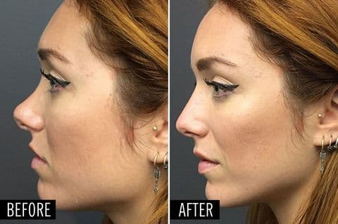 Belinda Before And After Plastic Surgery 1