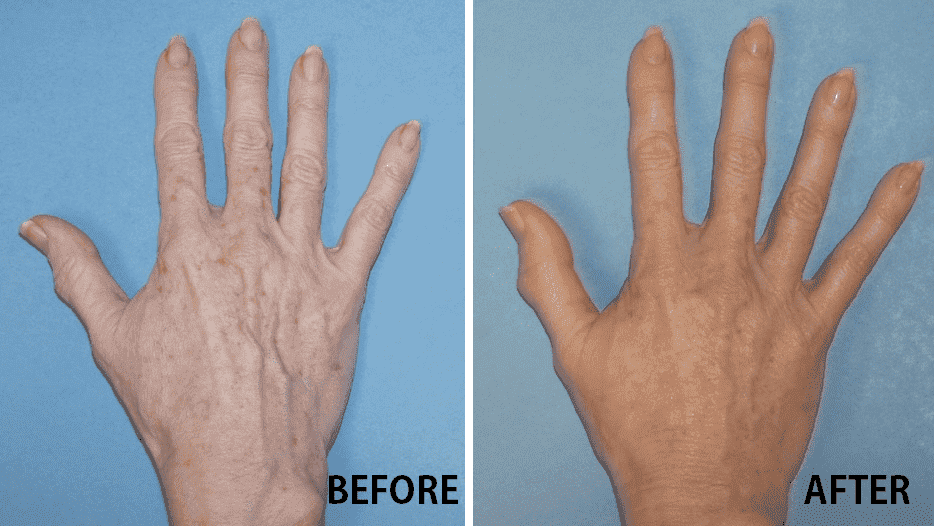 Finger Plastic Surgery Before And After 1