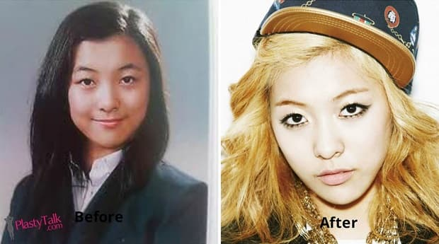 Fx Luna Before And After Plastic Surgery 1