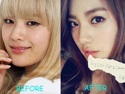 Nana After School Before Plastic Surgery 1