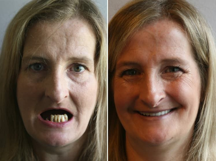 Before And After Botched Plastic Surgery 1