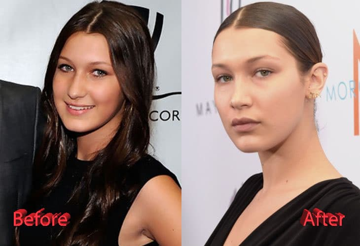 Bella Hadid Before After Plastic Surgery 1