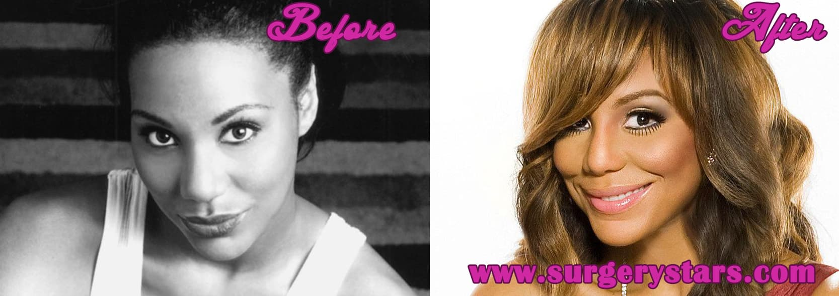 Braxton Plastic Surgery Before And After 1