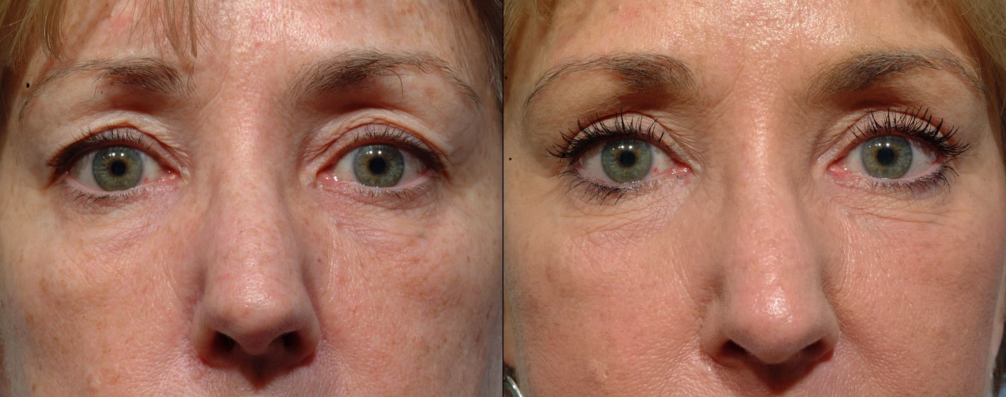 Eyelid Plastic Surgery Before And After 1