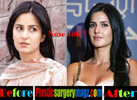 Katrina Before And After Plastic Surgery 1