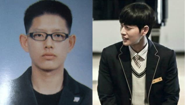 Running Man Plastic Surgery Before After 1