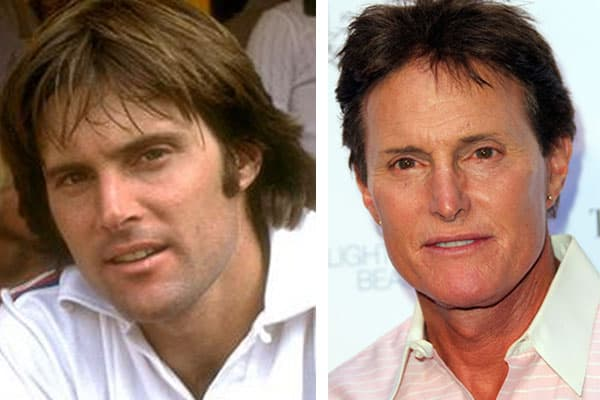 Amazing Before After Men Plastic Surgery 1