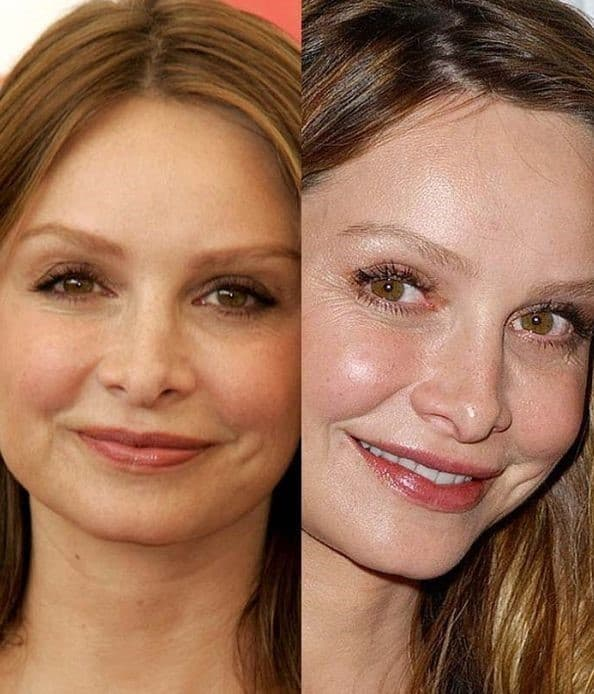 Calista Flockhart Before Plastic Surgery 1
