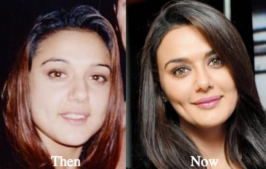 Plastic Surgery Before After Narrow Face 1