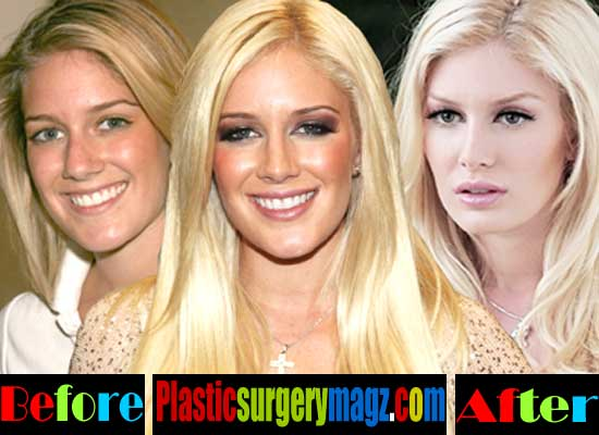 Plastic Surgery On Ears Before And After 1
