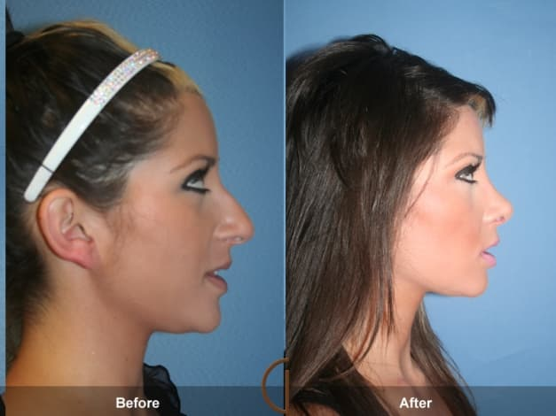 Teenage Plastic Surgery Before And After 1