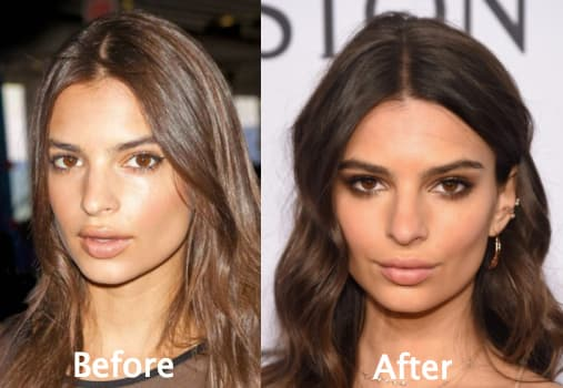 Before And After Kendall Plastic Surgery 1