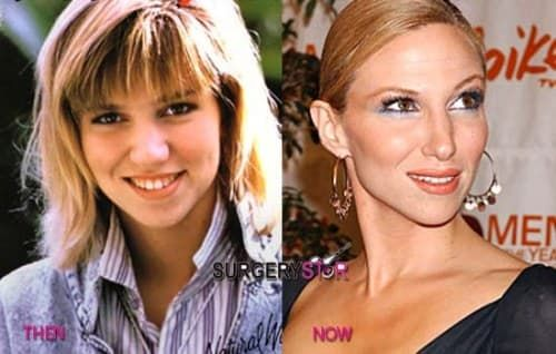 Before And After Plastic Surgery Blondie 1