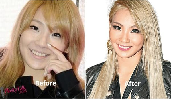 Cl 2Ne1 Plastic Surgery Before And After 1