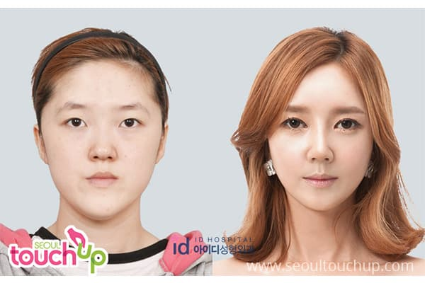 Korean Lady Plastic Surgery Before After 1