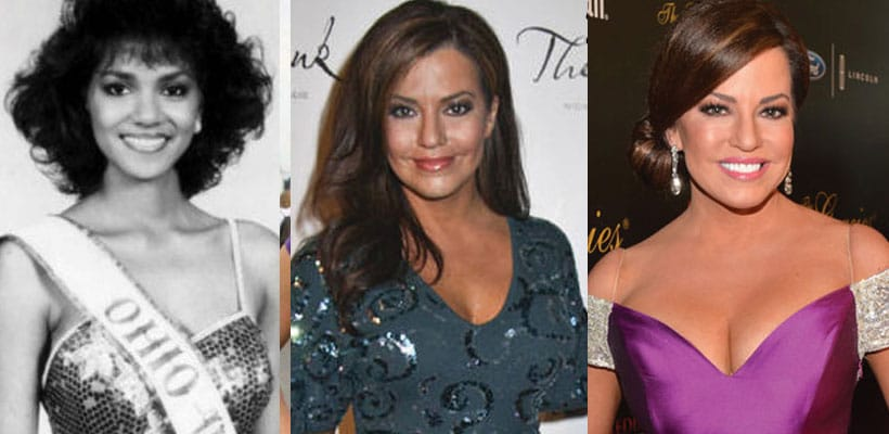 Robin Meade Plastic Surgery Before After 1